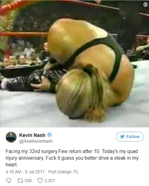 Кевину Нэшу предстоит операция на колене