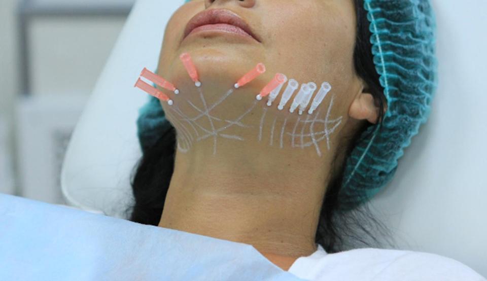 методы по омоложению кожи лица