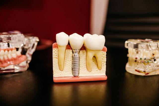 Макет зубной челюсти с имплантом