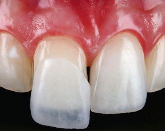 Как с помощью несъемных зубных протезов делают красивую улыбку?